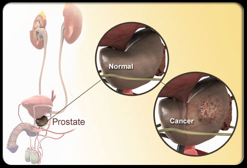 prostate-cancer-s1-photo-of-prostate-diagram